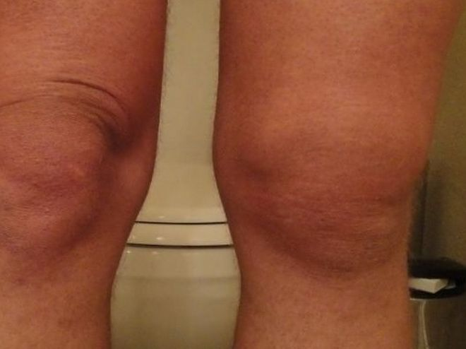 sinov t kol nnogo sugloba l kuvannya narodnimi zasobami 1 - Синовіт колінного суглоба лікування народними засобами