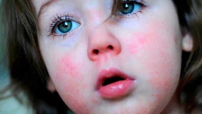 skarlatina u d tey simptomi prof laktika ta l kuvannya skarlatini 1 - Скарлатина у дітей симптоми, профілактика та лікування скарлатини