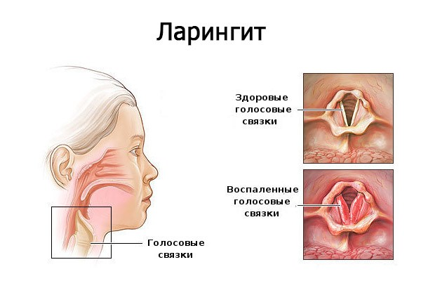 Спрей Терафлю ЛАР інструкція по застосуванню для горла, відгуки