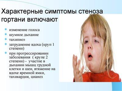 stenoz gortan u doroslih scho take stad simptomi 1 - Стеноз гортані у дорослих – що таке, стадії і симптоми
