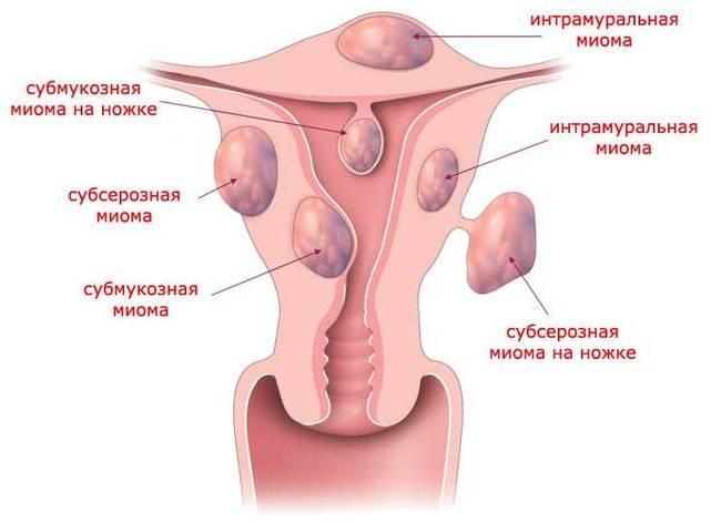 Субмукозная міома матки (вузол): що це таке, причини, симптоми і лікування