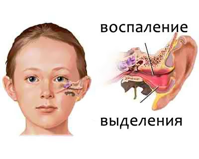 sul facil natr yu u vuha pri otit yak vikoristovuvati al bucid u vuha pri otit 1 - Сульфацил Натрію у вуха при отиті, як використовувати Альбуцид у вуха при отиті?