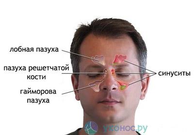 Трепанопункция ефективний спосіб лікування фронтита