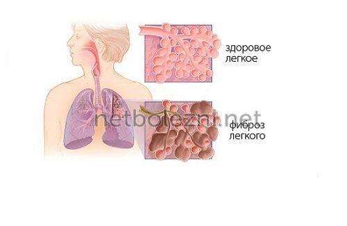 Тривалість життя при фіброзі легень