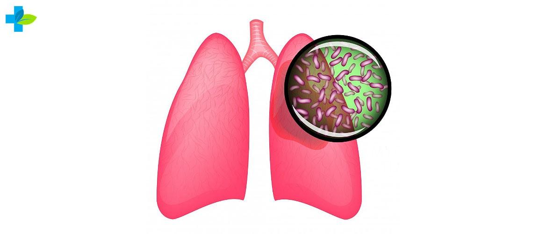 Туберкулз симптоми та методики лікування