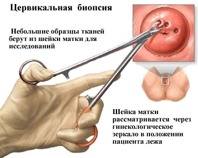 Тяжка дисплазія шийки матки: що це таке і як лікується захворювання 3 і 4 ступеня, може патологія спровокувати рак