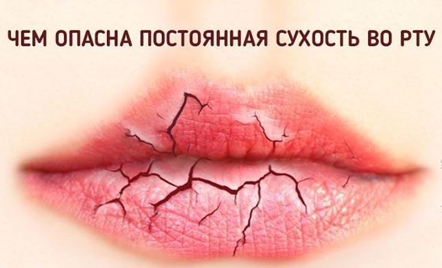 У чому причина сухості в роті
