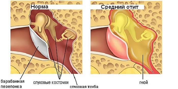 У дитини болить вухо: що робити і які средтва застосовувати