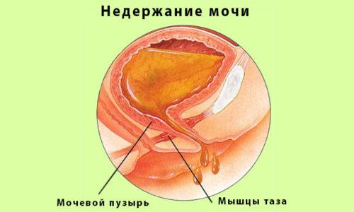 УЗД сечового міхура: як роблять дослідження і що показує