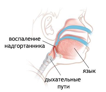 Від чого виникає набряк гортані і як його лікувати