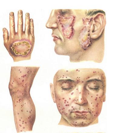 Відкрита форма туберкульозу – як вона передається, симптоми, лікування