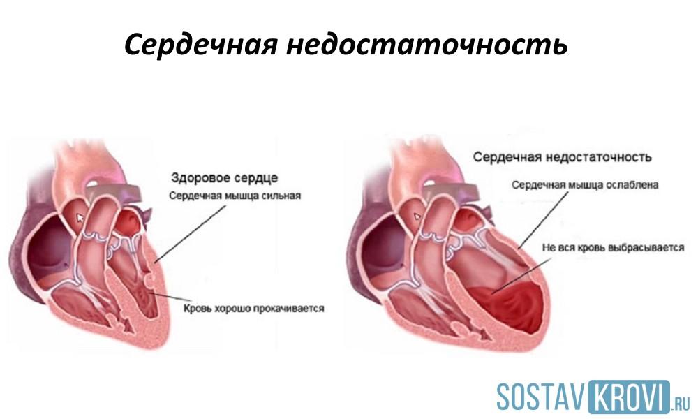 Відмітні ознаки серцевої астми причини симптоми і лікування та диференціальна діагностика