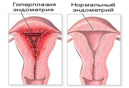 Вагініт у жінок: симптоми і лікування