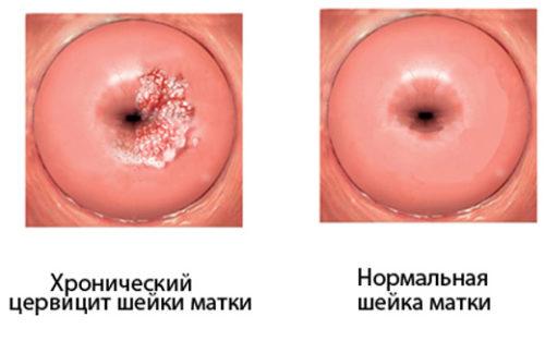 Вагітність при запаленні шийки матки