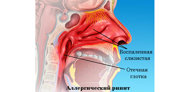 vazomotorniy alerg chniy rin t simptomi metodi l kuvannya 1 - Вазомоторний алергічний риніт, симптоми і методи лікування