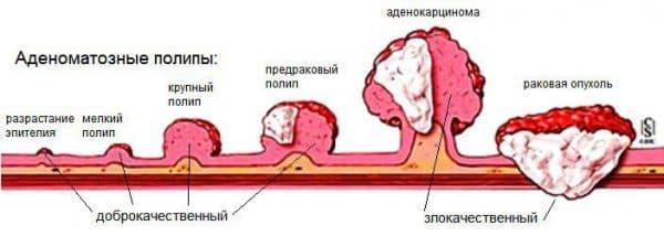 Вазомоторний риніт види причини та способи лікування
