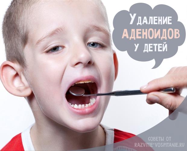 vidalennya adeno d v osoblivost v dbudovchogo per odu 1 - Видалення аденоїдів і особливості відбудовчого періоду