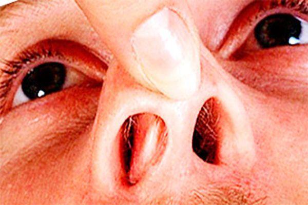 vidalennya sineh nosa v lor kl n c v spb 1 - Видалення синехії носа в ЛОР-клініці в СПб