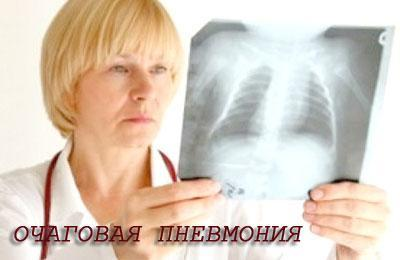 vognischeva pnevmon ya u d tey l kuvannya 1 - Вогнищева пневмонія у дітей лікування