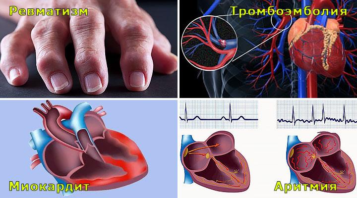 yak ang na mozhe vplinuti na serce 1 - Як ангіна може вплинути на серце