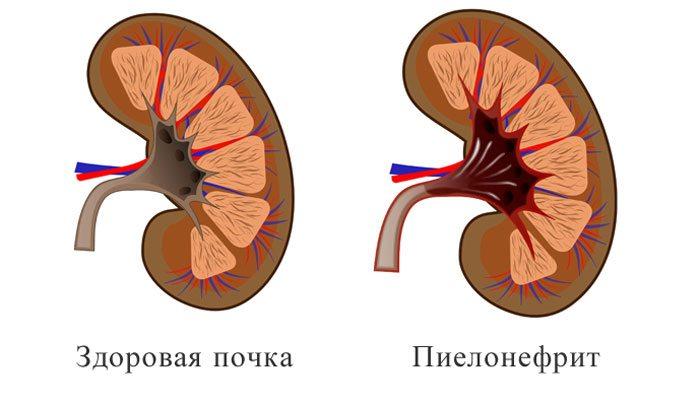 yak bol pri p lonefrit u doroslih 1 - Які болі при пієлонефриті у дорослих