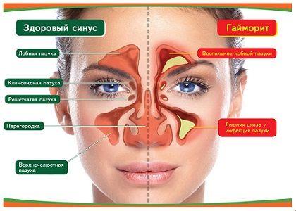 Як лікувати гайморит цибулею – Хвороби носа