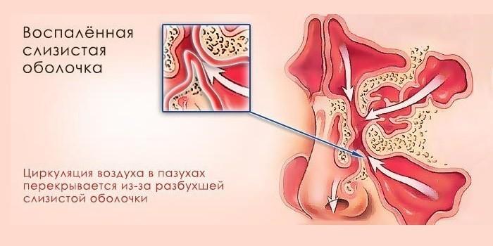 yak l kuvati kataral niy gaymorit u d tey 1 - Як лікувати катаральний гайморит у дітей