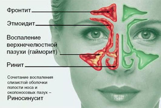yak l kuvati rinosinusit 1 - Як лікувати риносинусит