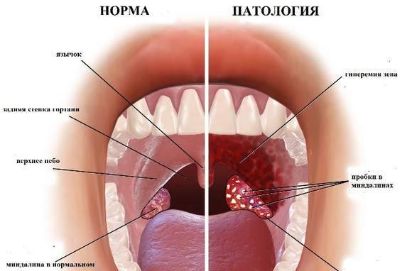 yak l kuvati tonzilitnye probki v domashn h umovah 1 - Як лікувати тонзилитные пробки в домашніх умовах?