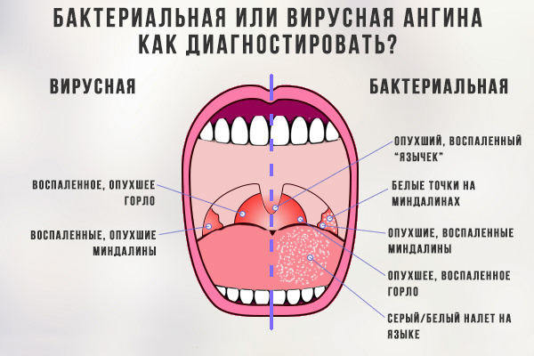yak l kuvati v rusnu ang nu u doroslih 1 - Як лікувати вірусну ангіну у дорослих