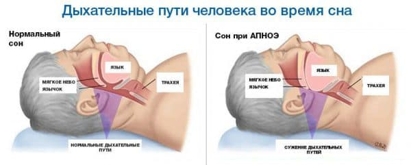 Як позбавитися від хропіння в домашніх умовах: вправи, масаж, народні засоби, ліки та прилади для позбавлення від хропіння