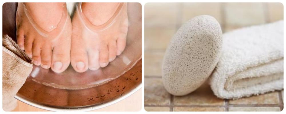 Як позбутися натоптишів на ногах 20 рецептів