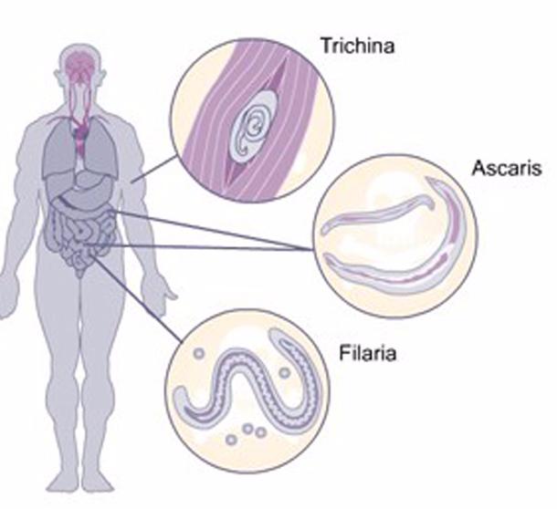 Як позбутися паразитів в організмі в домашніх умовах народними засобами