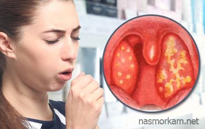 Як позбутися від білих грудочок в горлі