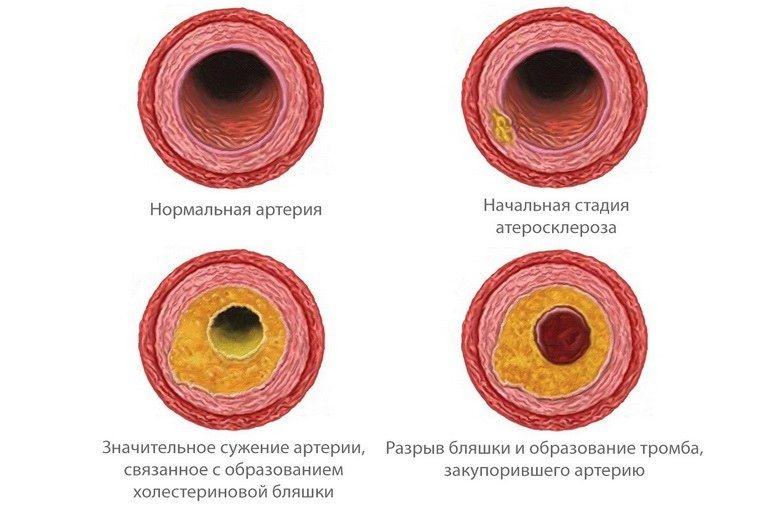 yak pozbutisya v d holesterinovih blyashok v sudinah narodnimi zasobami 1 - Як позбутися від холестеринових бляшок в судинах народними засобами
