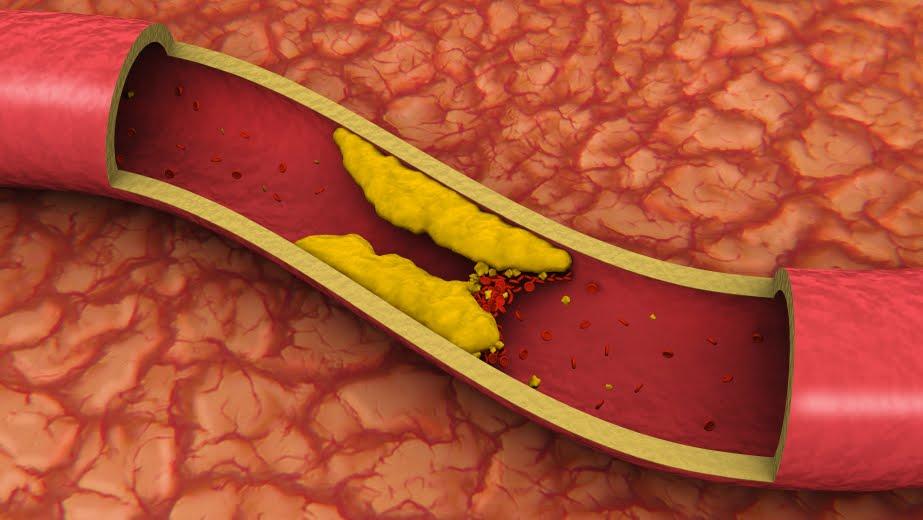 yak pozbutisya v d holesterinu v krov poradi ta rekomendac 1 - Як позбутися від холестерину в крові: поради та рекомендації