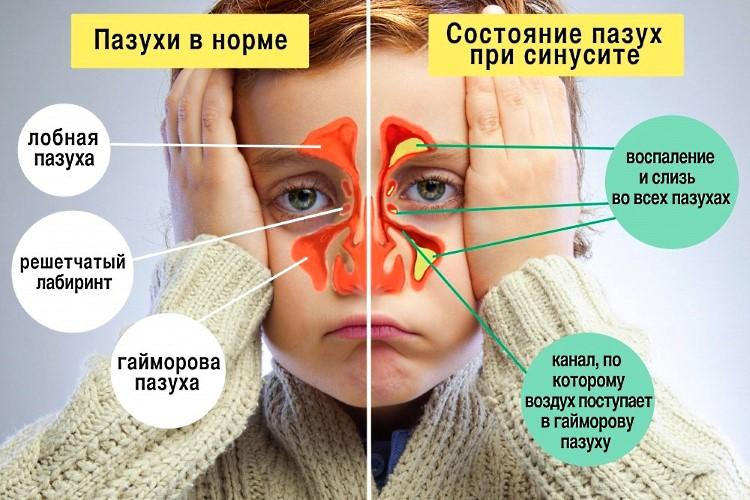 Як правильно капати Діоксидин в ніс дітям і дорослим при нежиті