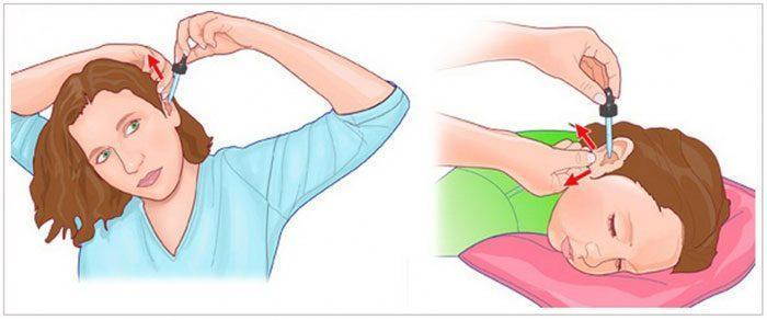 Як правильно і швидко вибрати ефективні вушні краплі при отиті
