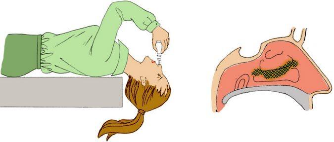 Як при гаймориті промивати ніс Мірамістином