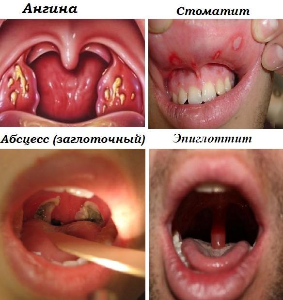 Які причини болю в горлі при ковтанні