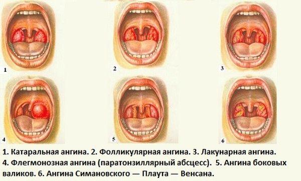yak priymati streptocid pri bolyu v gorl 1 - Як приймати стрептоцид при болю в горлі