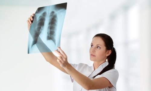 yak v dr zniti bronh t v d pnevmon 1 - Як відрізнити бронхіт від пневмонії