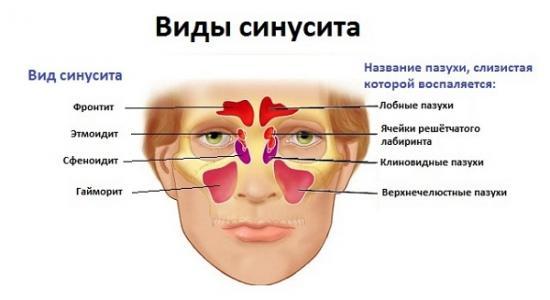 yak v dr zniti nezhit v d gaymoritu 1 - Як відрізнити нежить від гаймориту