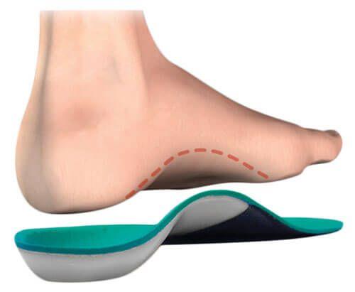 Як вибрати ортопедичні устілки для взуття
