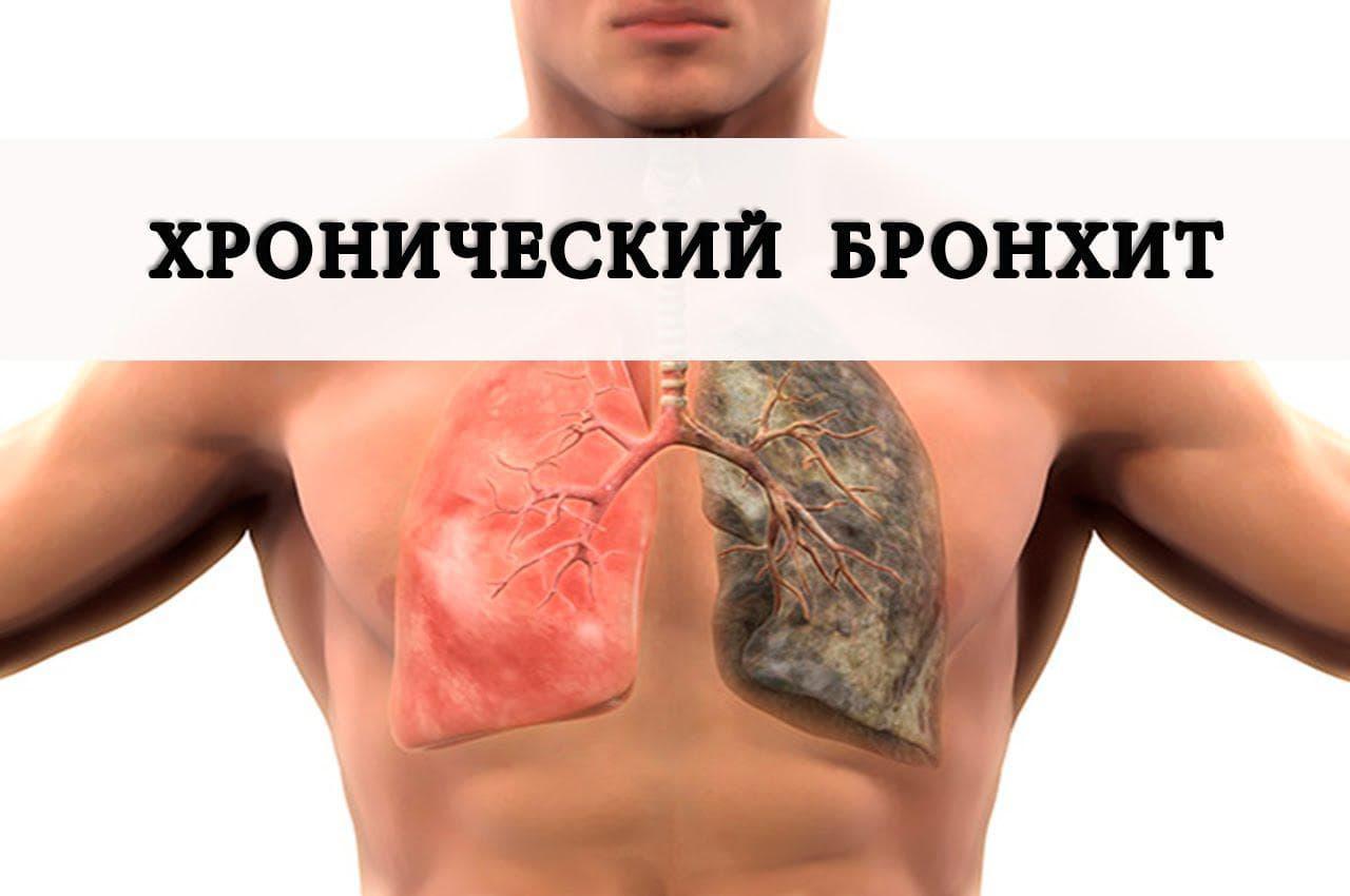 yak vil kuvati hron chniy bronh t nazavzhdi 1 - Як вилікувати хронічний бронхіт назавжди