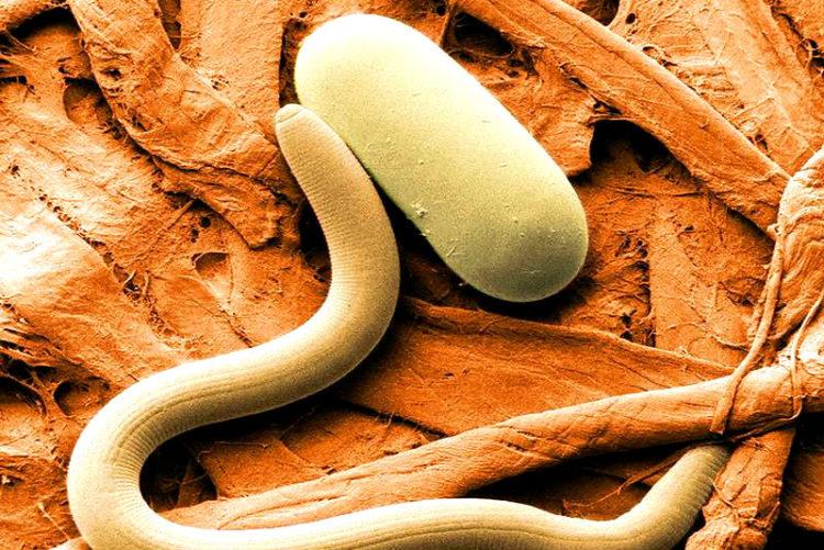 yak vivesti parazit v z organ zmu v domashn h umovah narodnimi zasobami 1 - Як вивести паразитів з організму в домашніх умовах народними засобами