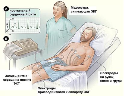 yak viyaviti vil kuvati rabdom ol z 1 - Як виявити і вилікувати Рабдоміоліз