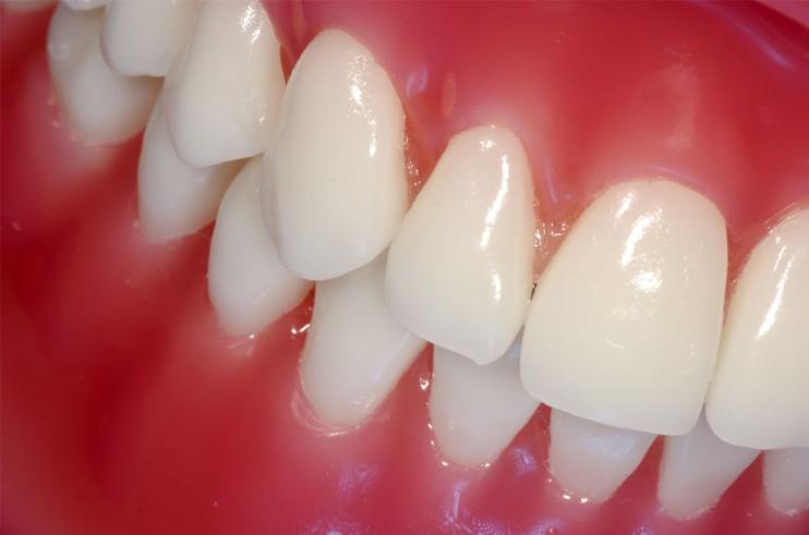 yak zm cniti zubi v domashn h umovah 1 - Як зміцнити зуби в домашніх умовах