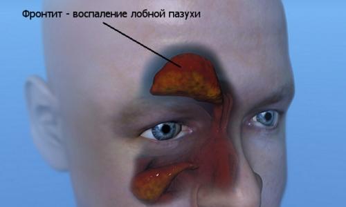 З лікуванням фронтиту не можна затягувати