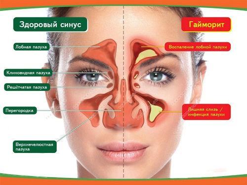 З носа капає жовта рідина: причини і лікування